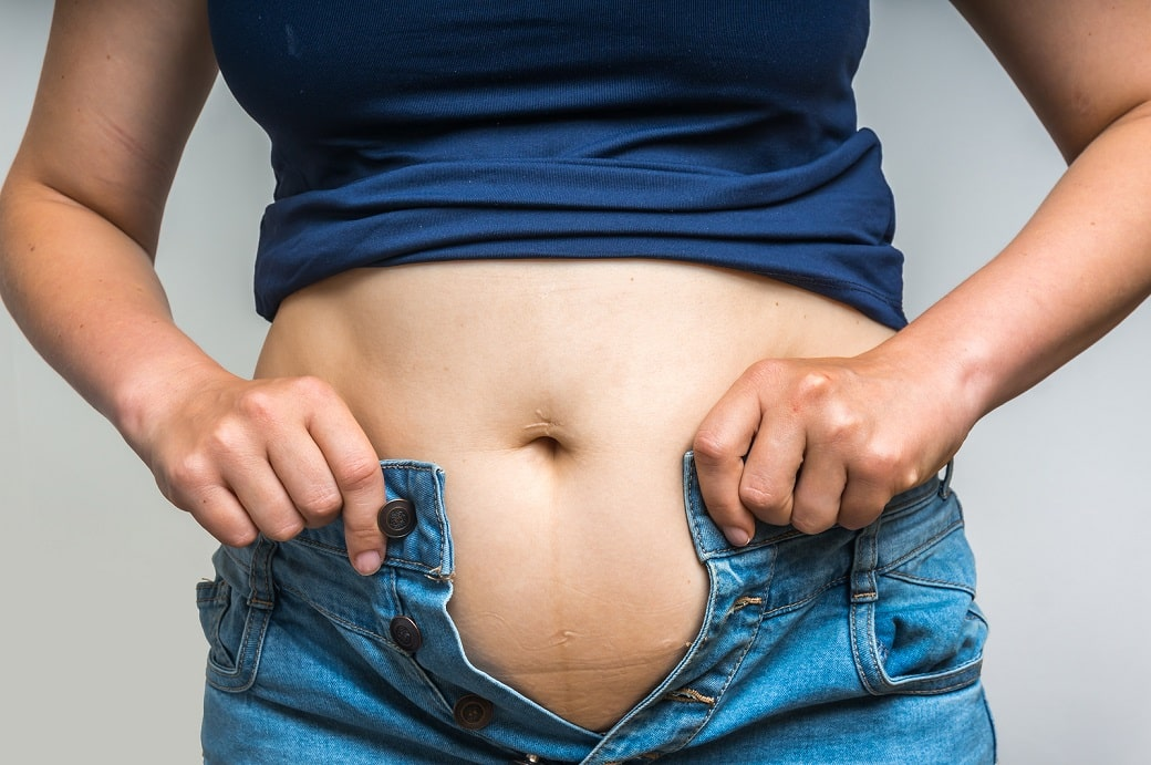 Tight jeans? This hormone imbalance causes weight gain