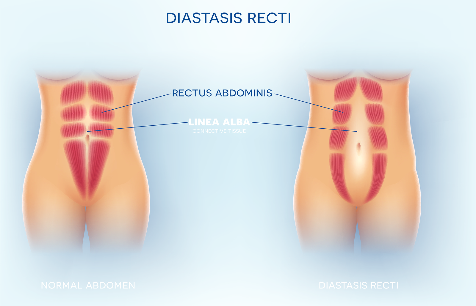 How-to-fix-diastasis-recti